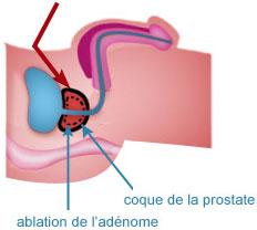 Adénomectomie