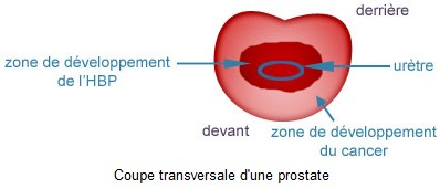 Coupe transversale d'une prostate
