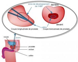 Hypertrophie de la prostate – Généralités