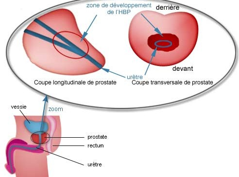 Hypertrophie de la prostate