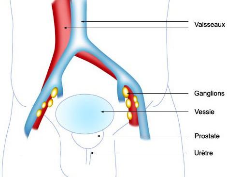 Traitements du cancer de la prostate