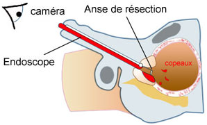 Résection endoscopique de prostate