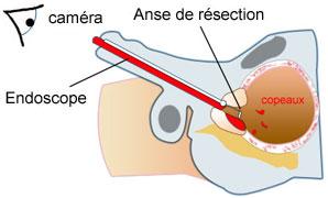 Hypertrophie de la prostate : Traitements