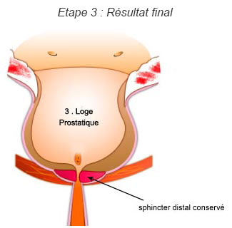 Etape 3 de la chirurgie : Résultat final