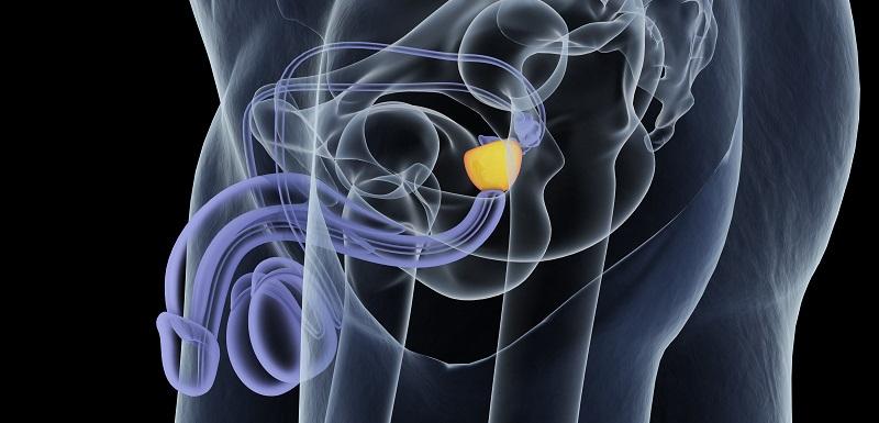 Du nouveau pour le cancer de la prostate