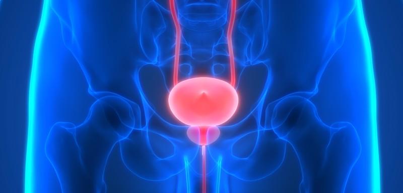 IRM pour diagnostiquer le cancer de la prostate