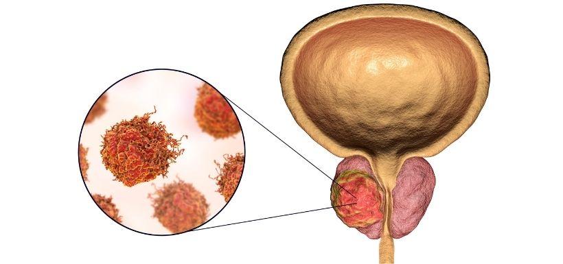 Cancer de la prostate : un lien avec les bactéries intestinales ?